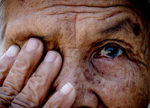 An Optic Nerve Disease: Glaucoma